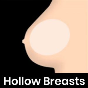 Hollow Breasts